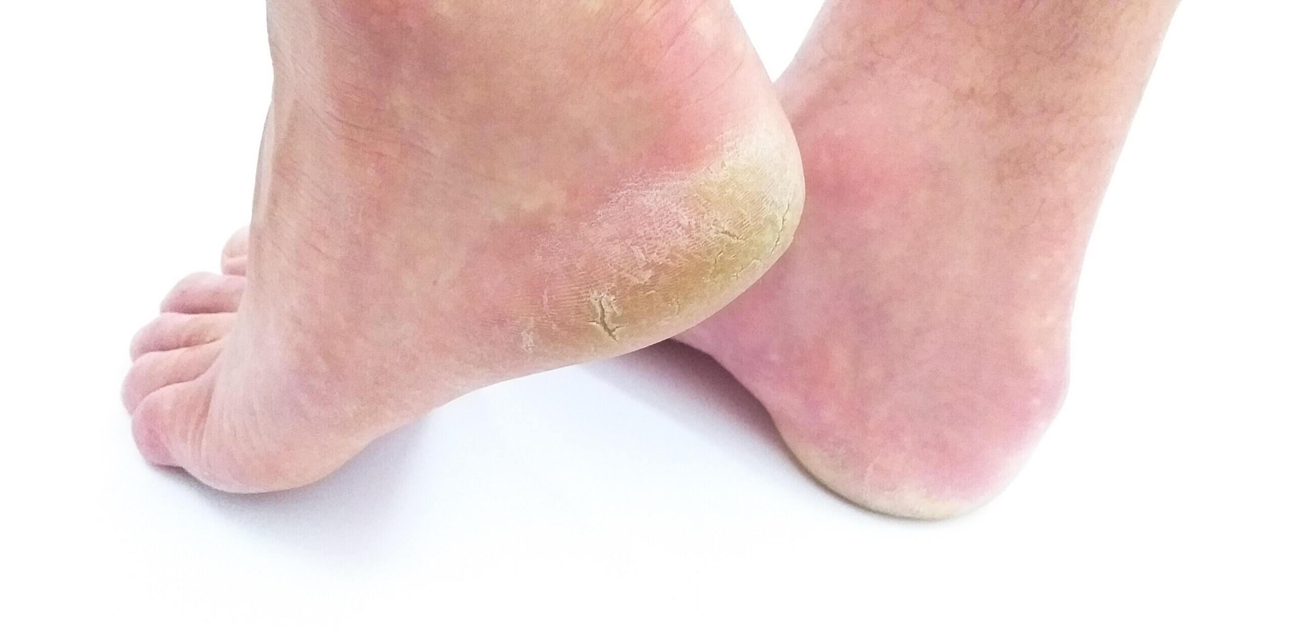 Heilpraktiker Eisenschmidt: Fersenschmerz Achillessehnen-Schmerzen